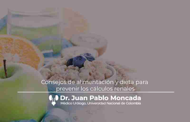 Consejos de alimentación y dieta para prevenir los cálculos renales