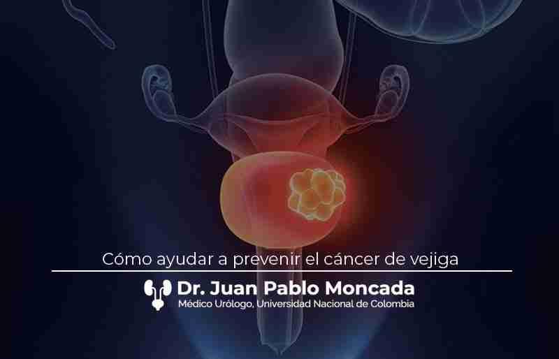 Cómo ayudar a prevenir el cáncer de vejiga